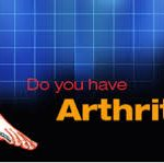 Arthritis Cure – Arthritis Relief With Natural Treatments